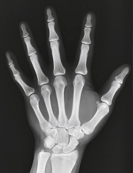 X-RAYS were discovered by accident in 1895.
